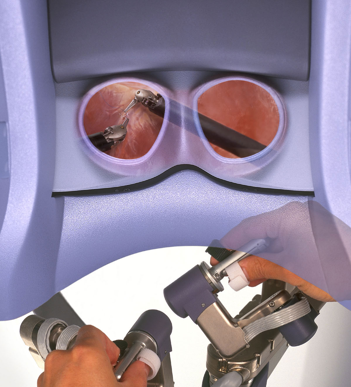 Insite Vision - da Vinci Surgical System - Picture: /uploads/images/devices/insite-vision-001.jpg